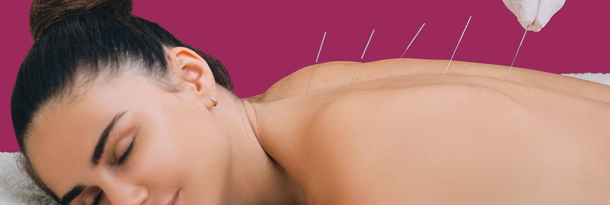 akupuntur muenchen orthopaede - Akupunktur